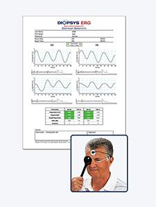 DiopsysERG - Contrast Sensitivity Test Result