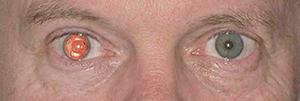 Aniridia in right eye