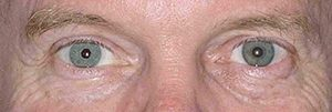 Right eye after implantation with Artificial Iris
