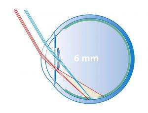 6mm optic