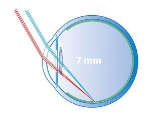 7 mm optic