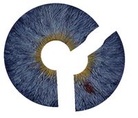 Blue Artificial Iris
